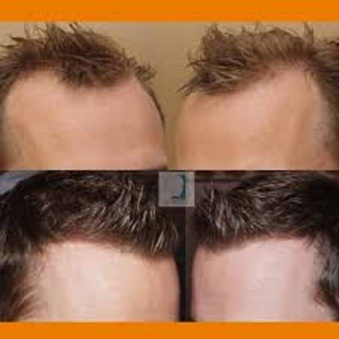 Hair transplant Consultation for a hair transplant