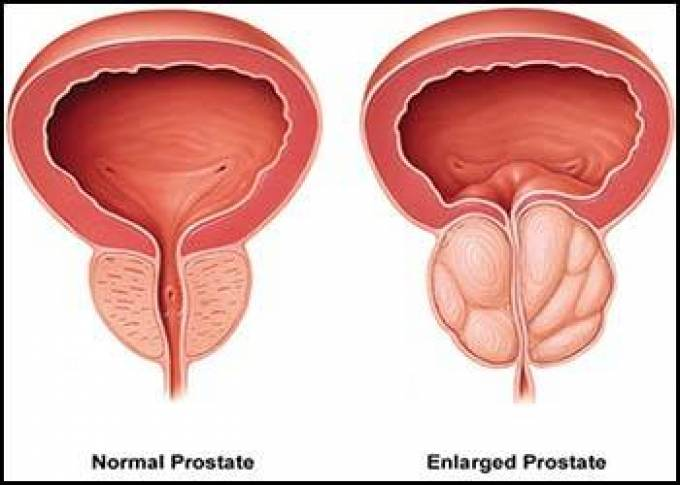 Surgical options in Prostate Enlargement