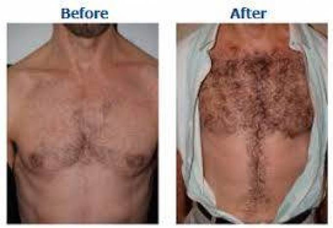 Now Body Hair Transplant Can Give You The Beard You Always Desired