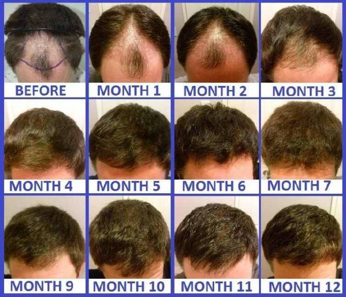 FUE Treatments: Chronology of a hair transplant results
